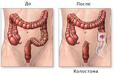 местнораспространенный плоскоклеточный й рак прямой кишки