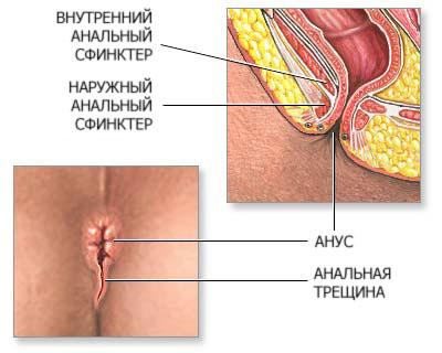 Проктосигмоидит - что это такое, лечение, причины ...