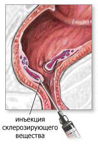 склеротерапия при геморрое отзывы