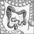 Болезнь Крона что это такое симптомы лечение и прогноз