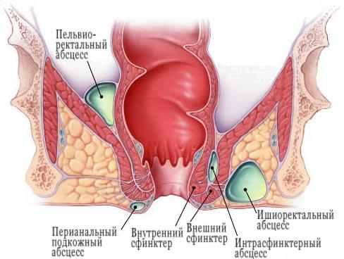 http://www.proctolog.ru/images/paraproct_02.jpg