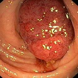 как отличается геморрой от рака прямой кишки