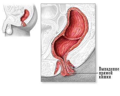 Сужение анального отверстия и прямой кишки